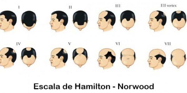 HAMILTON SCALE